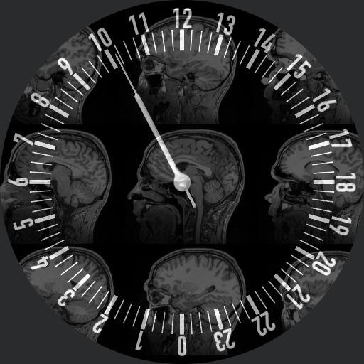 MRI slow hand brain watch